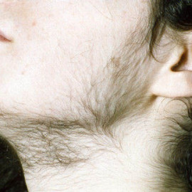 Young woman with hirsutism