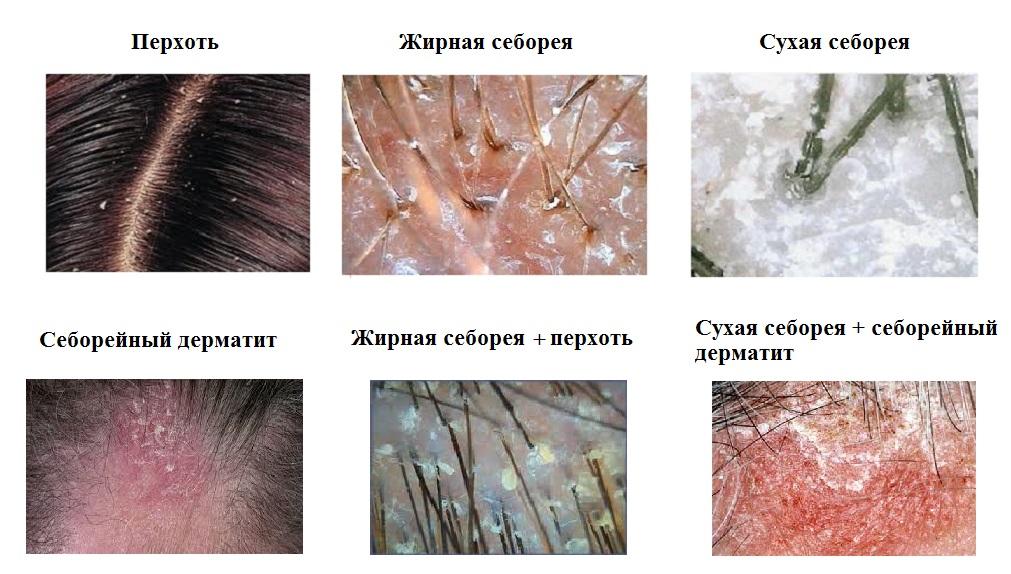 Чем вывести себорейный дерматит с головы
